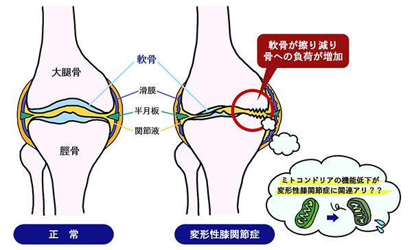図2 変形性膝関節症の発症と悪化