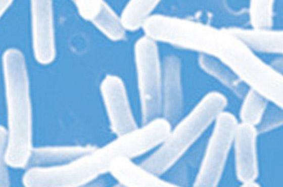 夏の免疫対策 -「L-92乳酸菌」が夏の暑さによる免疫力低下を抑える可能性を確認-